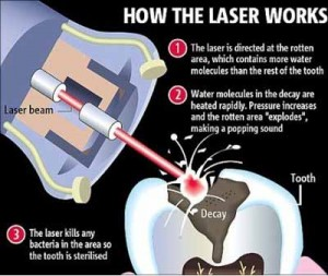 laser-decay