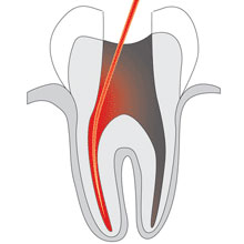 root_canal_therapy_22