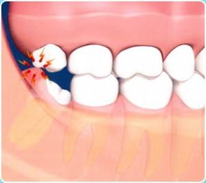 wisdom_teeth-300x267