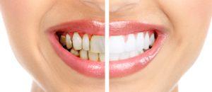 بهترین کلینیک دندانپزشکی در اهواز کلینیک پاستور